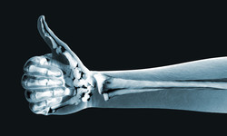 AFC's Digital X-Ray Services
